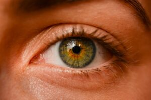 causes-of-bags-under-the-eyes